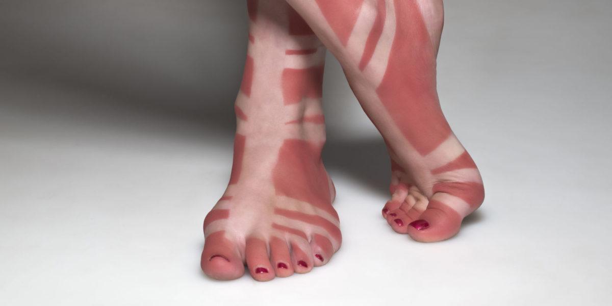 how to avoid sunburn on lake lanier this summer lake lanier. Black Bedroom Furniture Sets. Home Design Ideas